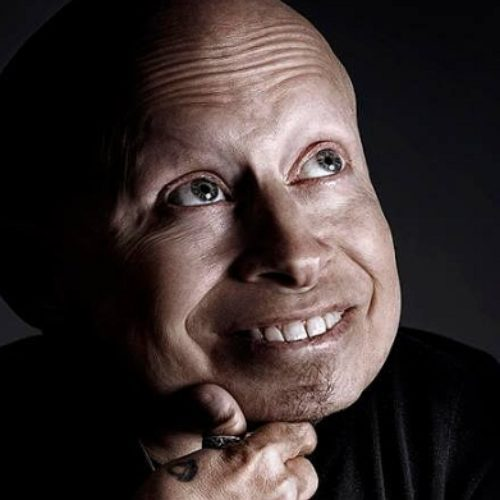 Muere Verne Troyer, el interprete de Mini Me en Austin Powers